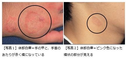 皮膚の病気